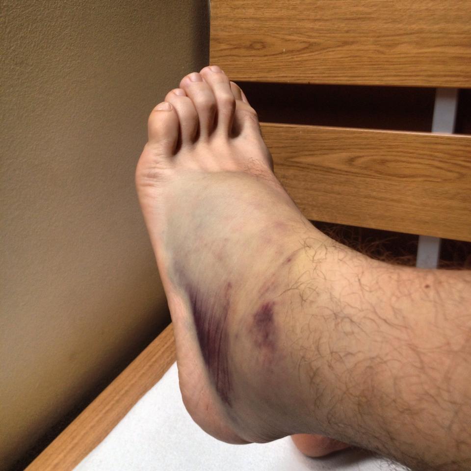 Attila lába jelenleg nem túl szép...