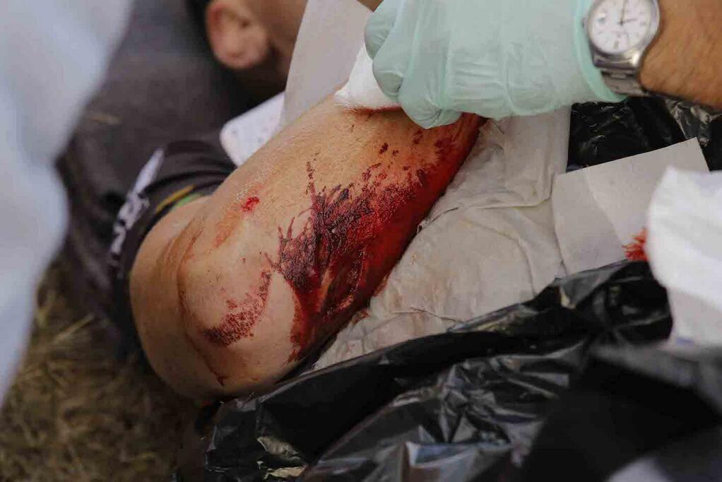 Bónusz kép tegnapról: Hannes Genze keze esést követően