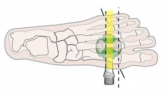 A láb elhelyezkedése Speedplay pedálon